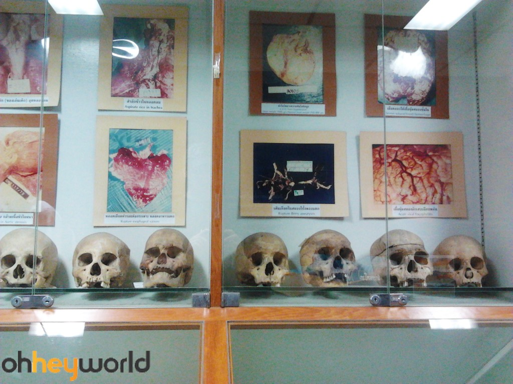 Forensic Pathology Museum - Skulls